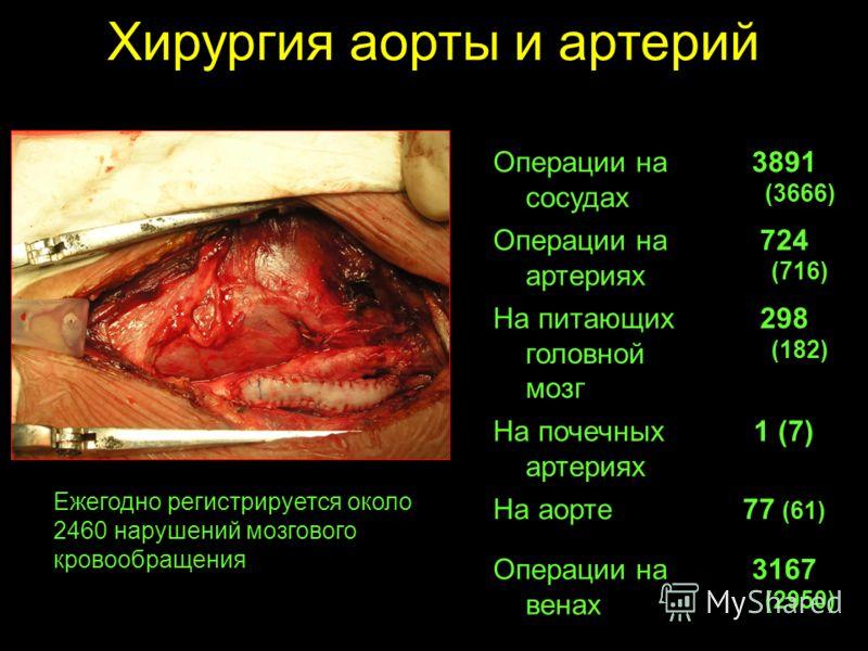 Хирургия аорты и артерий Операции на сосудах 3891 (3666) Операции на артериях 724 (716) На питающих головной мозг 298 (182) На почечных артериях 1 (7) На аорте77 (61) Операции на венах 3167 (2950) Ежегодно регистрируется около 2460 нарушений мозговог