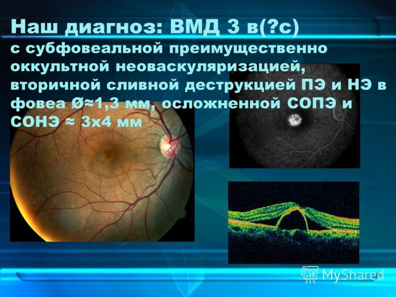 Наш диагноз: ВМД 3 в(?с) с субфовеальной преимущественно оккультной неоваскуляризацией, вторичной сливной деструкцией ПЭ и НЭ в фовеа Ø1,3 мм, осложненной СОПЭ и СОНЭ 3х4 мм