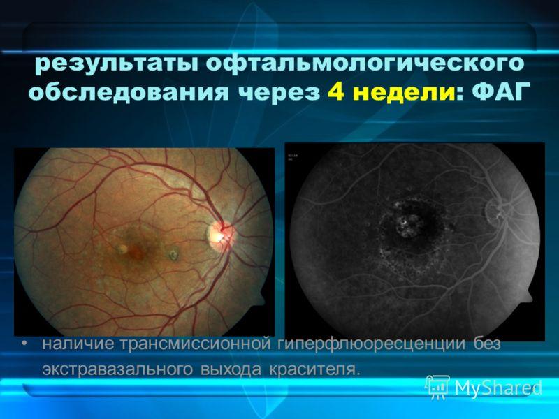 результаты офтальмологического обследования через 4 недели: ФАГ наличие трансмиссионной гиперфлюоресценции без экстравазального выхода красителя.