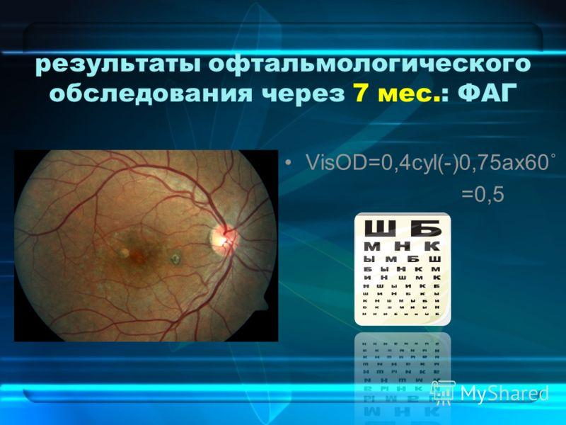 результаты офтальмологического обследования через 7 мес.: ФАГ VisOD=0,4cyl(-)0,75ax60˚ =0,5