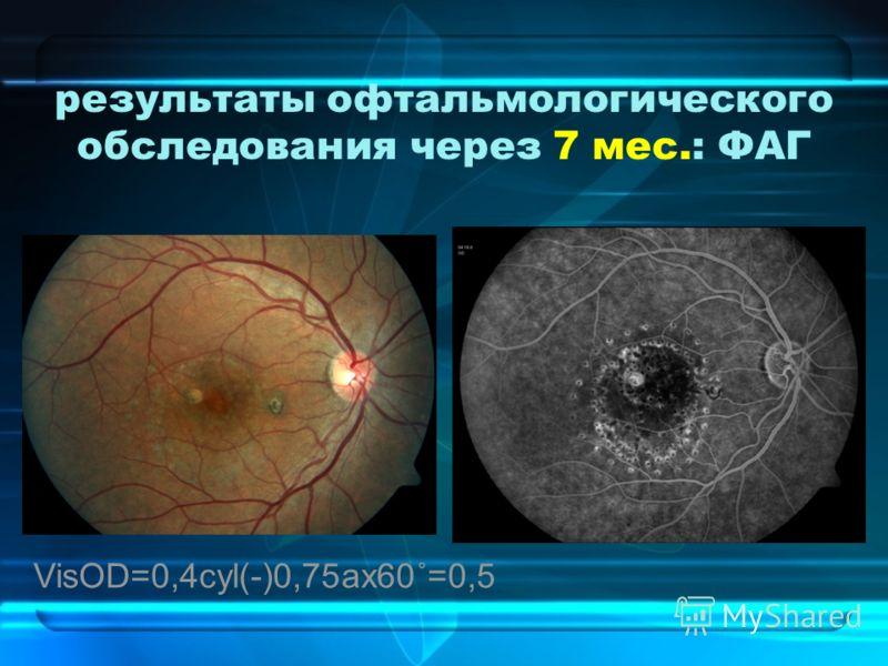 результаты офтальмологического обследования через 7 мес.: ФАГ VisOD=0,4cyl(-)0,75ax60˚=0,5