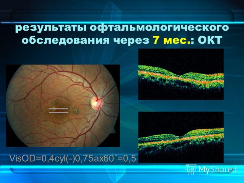 результаты офтальмологического обследования через 7 мес.: ОКТ VisOD=0,4cyl(-)0,75ax60˚=0,5