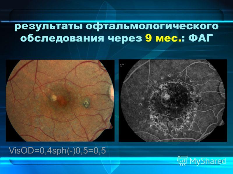 результаты офтальмологического обследования через 9 мес.: ФАГ VisOD=0,4sph(-)0,5=0,5