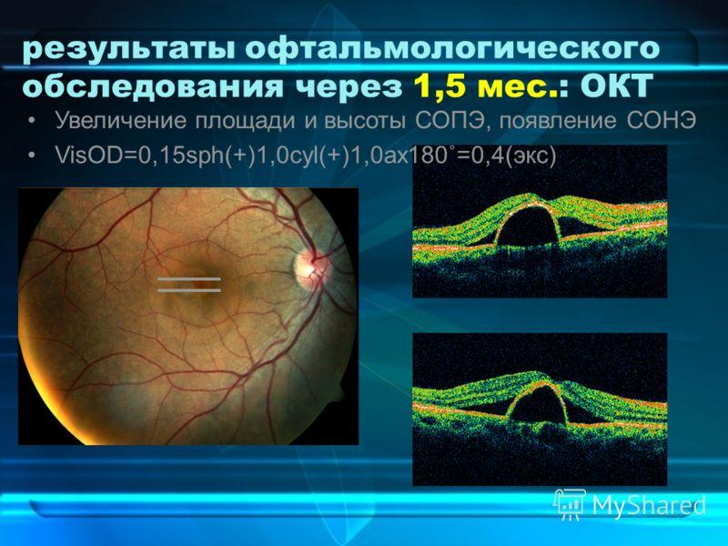 результаты офтальмологического обследования через 1,5 мес.: ОКТ Увеличение площади и высоты СОПЭ, появление СОНЭ VisOD=0,15sph(+)1,0cyl(+)1,0ax180˚=0,4(экс)