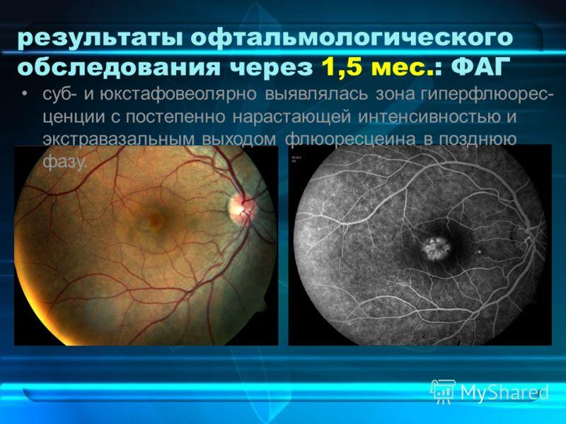 результаты офтальмологического обследования через 1,5 мес.: ФАГ суб- и юкстафовеолярно выявлялась зона гиперфлюорес- ценции с постепенно нарастающей интенсивностью и экстравазальным выходом флюоресцеина в позднюю фазу.