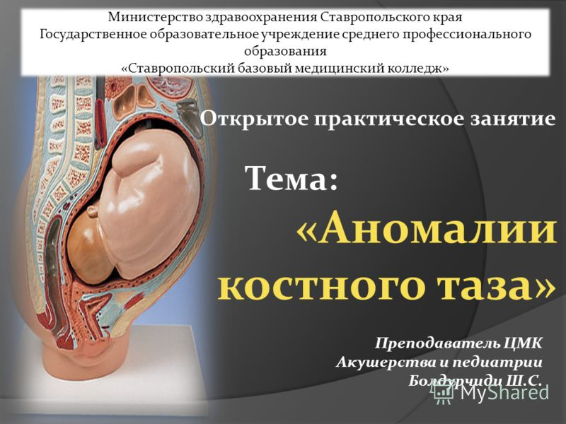 Преждевременная беременность
