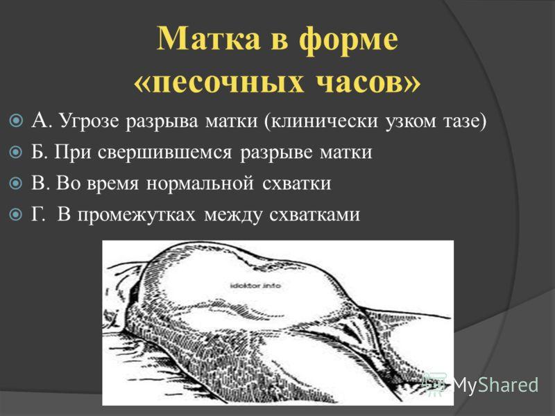 Матка в форме «песочных часов» А. Угрозе разрыва матки (клинически узком тазе) Б. При свершившемся разрыве матки В. Во время нормальной схватки Г. В промежутках между схватками