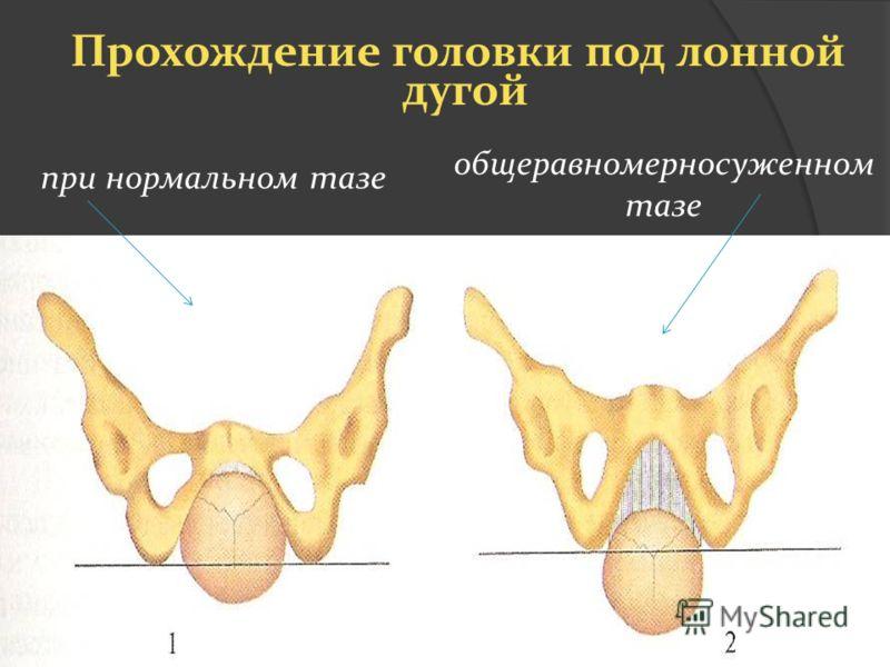 Прохождение головки под лонной дугой при нормальном тазе общеравномерносуженном тазе
