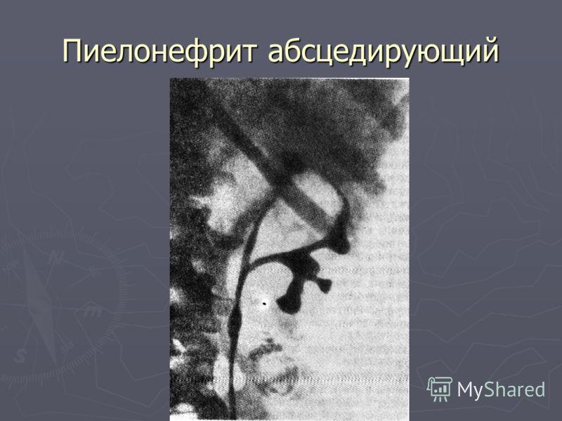 Пиелонефрит абсцедирующий