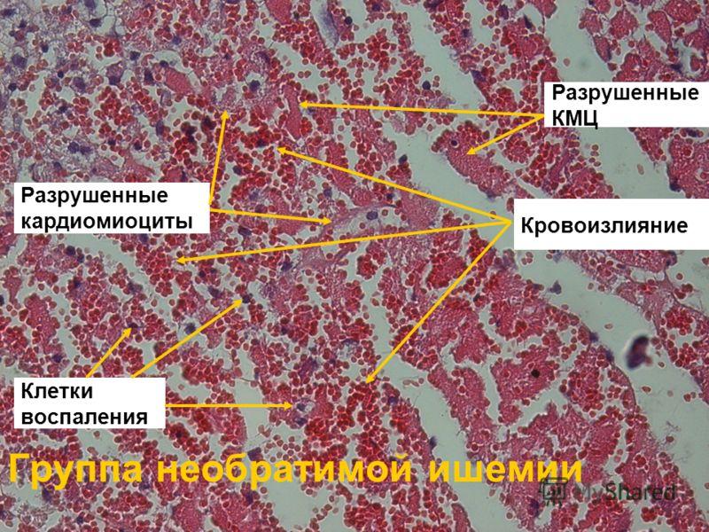Группа необратимой ишемии Кровоизлияние Разрушенные КМЦ Клетки воспаления Разрушенные кардиомиоциты