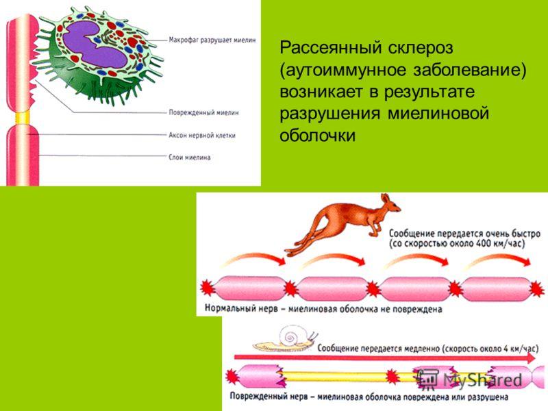 Рассеянный склероз (аутоиммунное заболевание) возникает в результате разрушения миелиновой оболочки