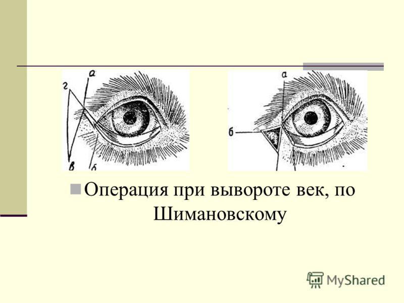 Операция при вывороте век, по Шимановскому