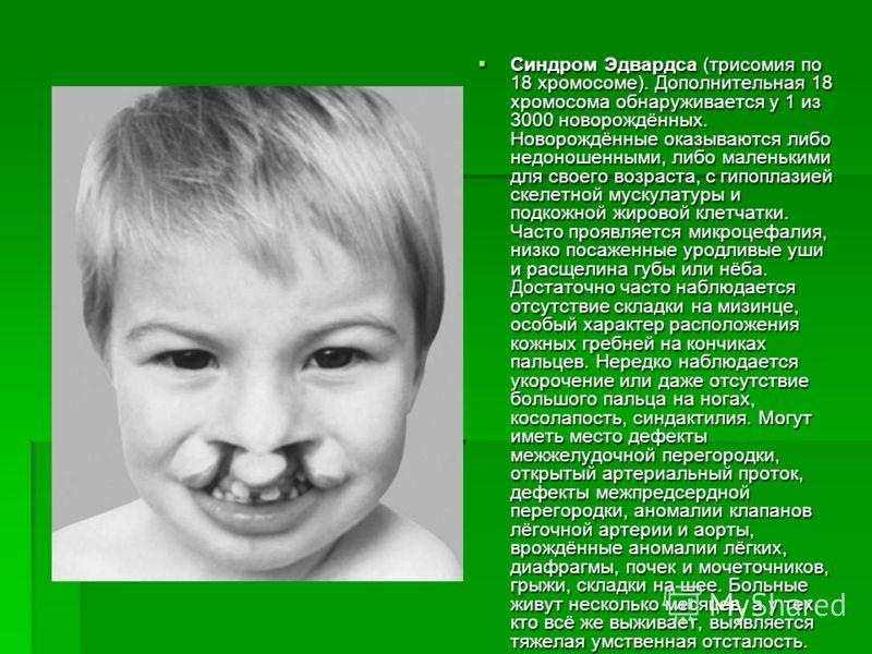 Синдром Эдвардса (трисомия по 18 хромосоме). Дополнительная 18 хромосома обнаруживается у 1 из 3000 новорождённых. Hоворождённые оказываются либо недоношенными, либо маленькими для своего возраста, с гипоплазией скелетной мускулатуры и подкожной жиро
