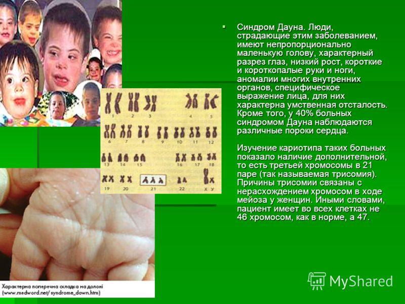 Синдром Дауна. Люди, страдающие этим заболеванием, имеют непропорционально маленькую голову, характерный разрез глаз, низкий рост, короткие и короткопалые руки и ноги, аномалии многих внутренних органов, специфическое выражение лица, для них характер