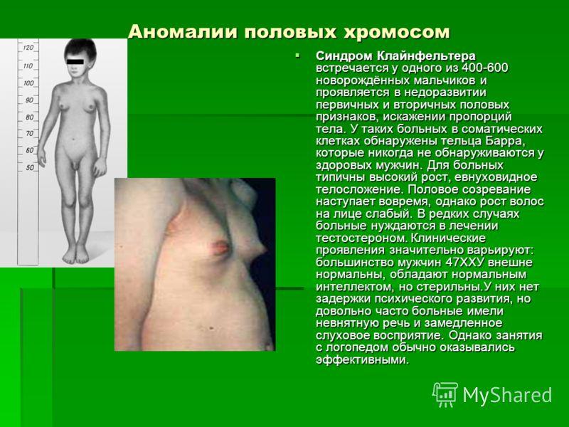 Аномалии половых хромосом Синдром Клайнфельтера встречается у одного из 400-600 новорождённых мальчиков и проявляется в недоразвитии первичных и вторичных половых признаков, искажении пропорций тела. У таких больных в соматических клетках обнаружены