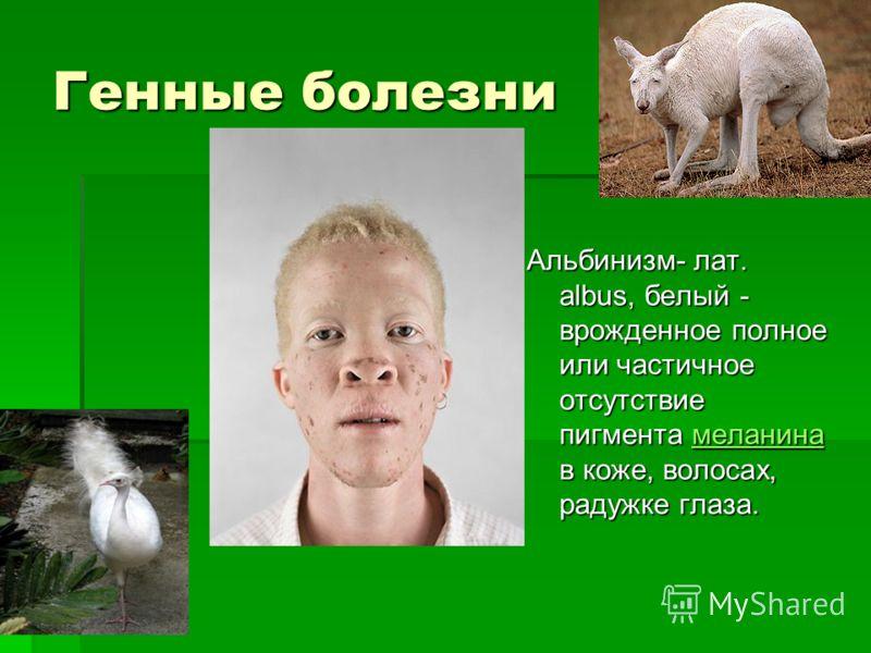 Генные болезни Альбинизм- лат. albus, белый - врожденное полное или частичное отсутствие пигмента меланина в коже, волосах, радужке глаза. меланина