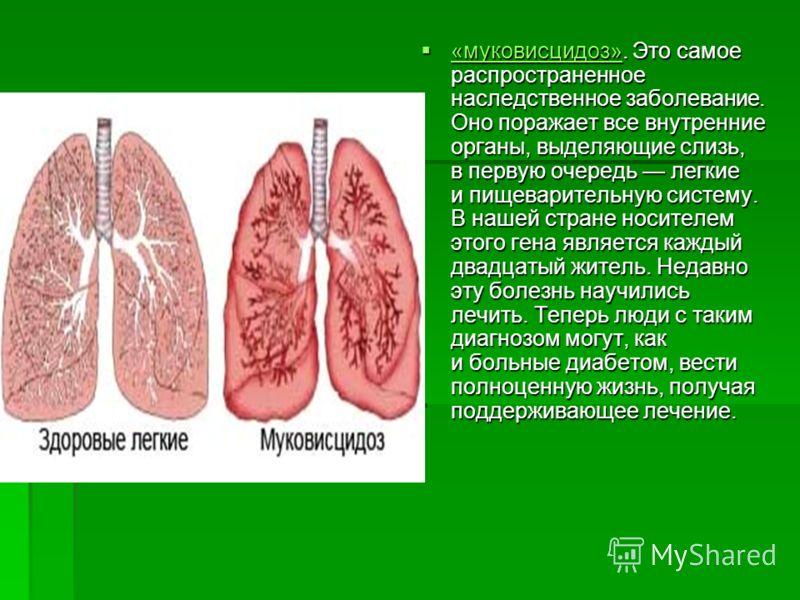 «муковисцидоз». Это самое распространенное наследственное заболевание. Оно поражает все внутренние органы, выделяющие слизь, в первую очередь легкие и пищеварительную систему. В нашей стране носителем этого гена является каждый двадцатый житель. Неда