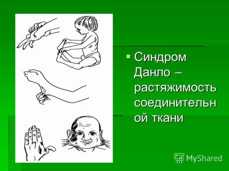 Синдром Данло – растяжимость соединительн ой ткани Синдром Данло – растяжимость соединительн ой ткани
