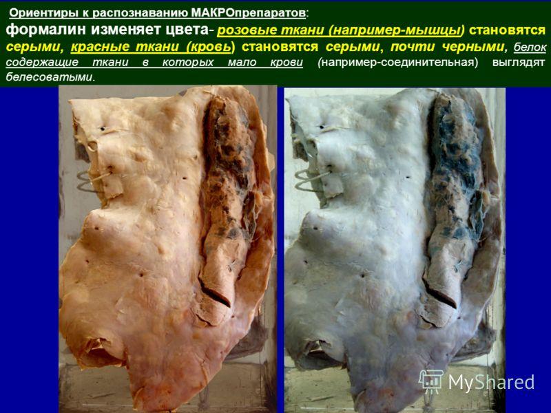 Ориентиры к распознаванию МАКРОпрепаратов: формалин изменяет цвета- розовые ткани (например-мышцы) становятся серыми, красные ткани (кровь) становятся серыми, почти черными, белок содержащие ткани в которых мало крови (например-соединительная) выгляд