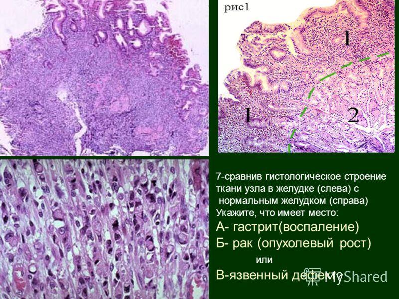 7-сравнив гистологическое строение ткани узла в желудке (слева) с нормальным желудком (справа) Укажите, что имеет место: А- гастрит(воспаление) Б- рак (опухолевый рост) или В-язвенный дефект ?