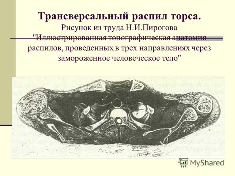 Трансверсальный распил торса. Рисунок из труда Н.И.Пирогова Иллюстрированная топографическая анатомия распилов, проведенных в трех направлениях через замороженное человеческое тело