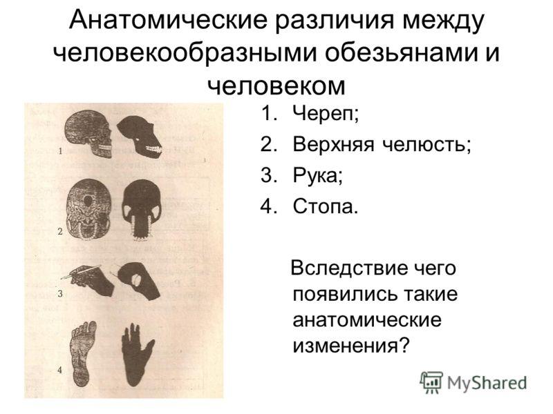 Анатомические различия между человекообразными обезьянами и человеком 1.Череп; 2.Верхняя челюсть; 3.Рука; 4.Стопа. Вследствие чего появились такие анатомические изменения?