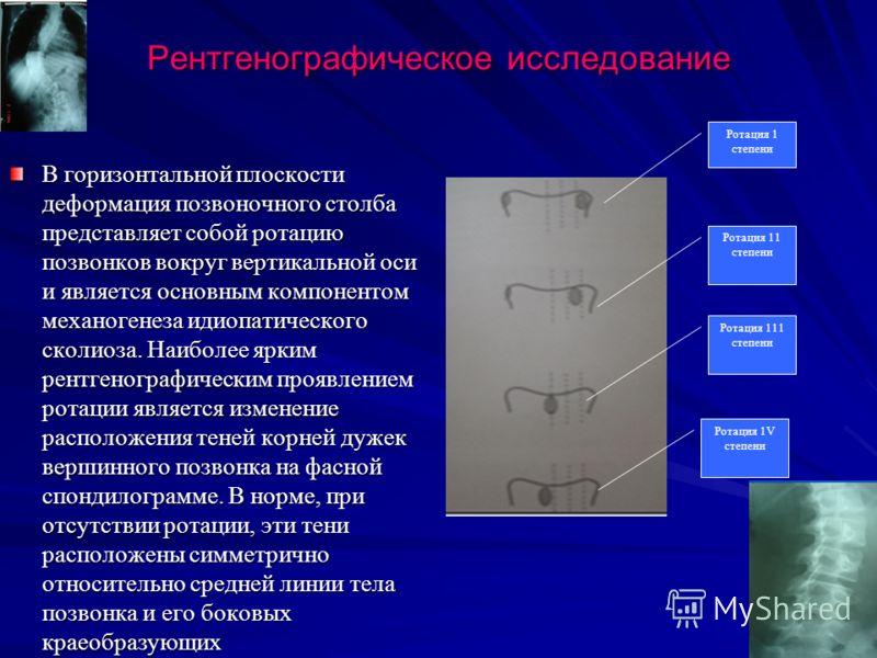 Рентгенографическое исследование В горизонтальной плоскости деформация позвоночного столба представляет собой ротацию позвонков вокруг вертикальной оси и является основным компонентом механогенеза идиопатического сколиоза. Наиболее ярким рентгенограф