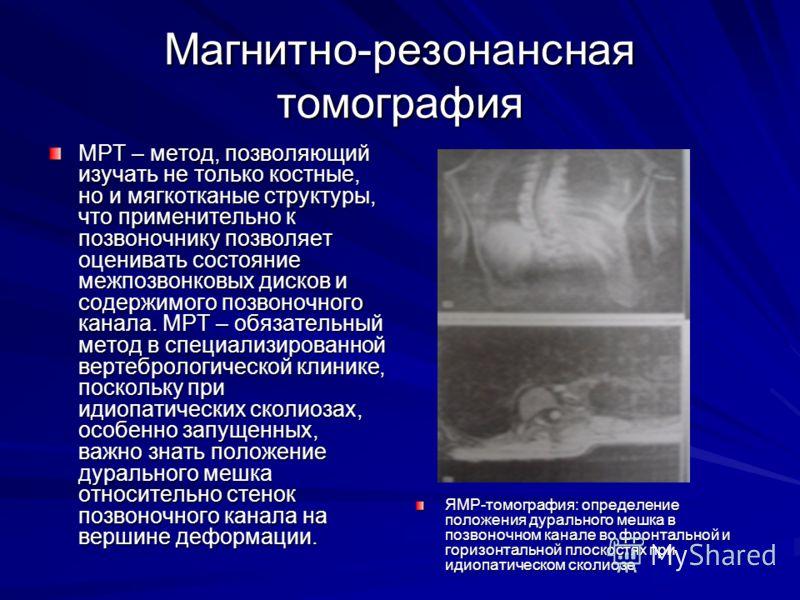 Магнитно-резонансная томография МРТ – метод, позволяющий изучать не только костные, но и мягкотканые структуры, что применительно к позвоночнику позволяет оценивать состояние межпозвонковых дисков и содержимого позвоночного канала. МРТ – обязательный