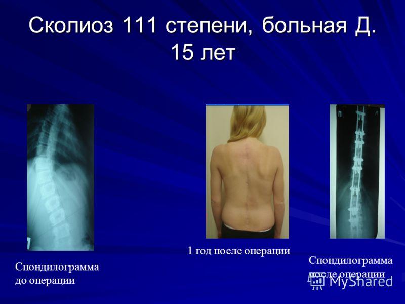 Сколиоз 111 степени, больная Д. 15 лет Спондилограмма после операции 1 год после операции Спондилограмма до операции