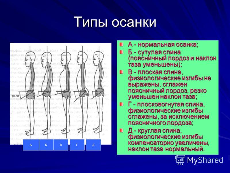 Типы осанки А - нормальная осанка; Б - сутулая спина (поясничный лордоз и наклон таза уменьшены); В - плоская спина, физиологические изгибы не выражены, сглажен поясничный лордоз, резко уменьшен наклон таза; Г - плосковогнутая спина, физиологические