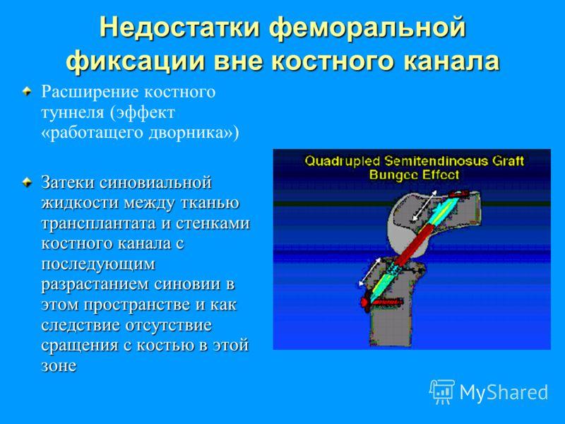 Недостатки феморальной фиксации вне костного канала Расширение костного туннеля (эффект «работащего дворника») Затеки синовиальной жидкости между тканью трансплантата и стенками костного канала с последующим разрастанием синовии в этом пространстве и