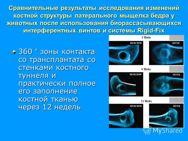 Сравнительные результаты исследования изменений костной структуры латерального мыщелка бедра у животных после использования биорассасывающихся интерферентных винтов и системы Rigid-Fix 360 ° зоны контакта со трансплантата со стенками костного туннеля