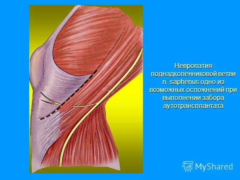 Невропатия поднадколенниковой ветви n. saphenus одно из возможных осложнений при выполнении забора аутотрансплантата