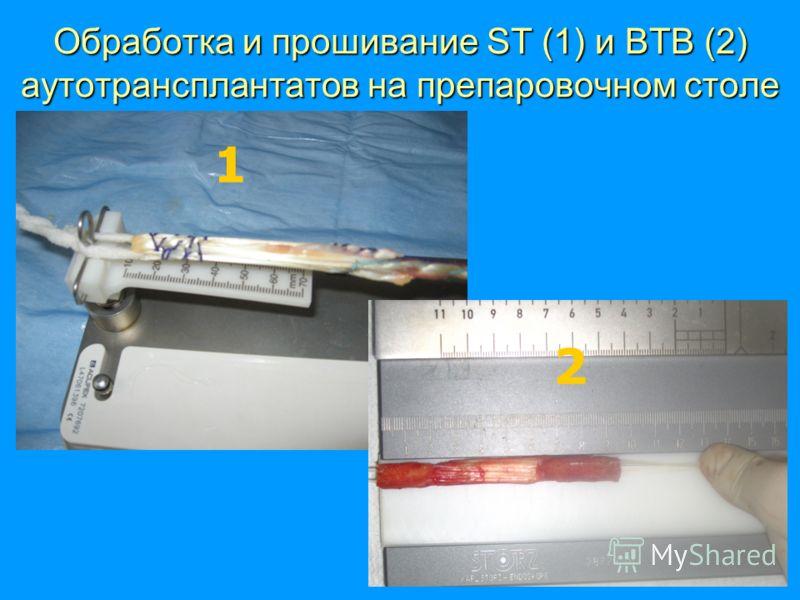 Обработка и прошивание SТ (1) и BTB (2) аутотрансплантатов на препаровочном столе 1 2