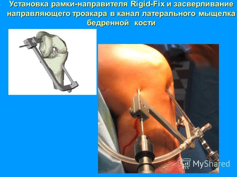 Установка рамки-направителя Rigid-Fix и засверливание направляющего троакара в канал латерального мыщелка бедреннойкости