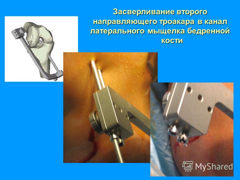 Засверливание второго направляющего троакара в канал латерального мыщелка бедренной кости