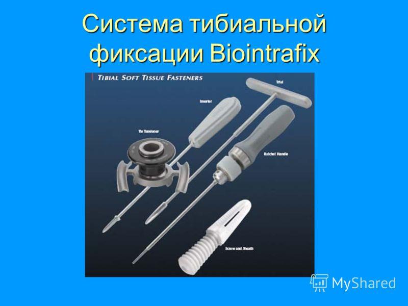 Система тибиальной фиксации Biointrafix