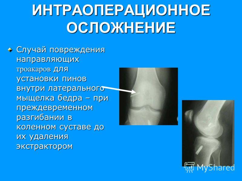 ИНТРАОПЕРАЦИОННОЕ ОСЛОЖНЕНИЕ Случай повреждения направляющих троакаров для установки пинов внутри латерального мыщелка бедра – при преждевременном разгибании в коленном суставе до их удаления экстрактором