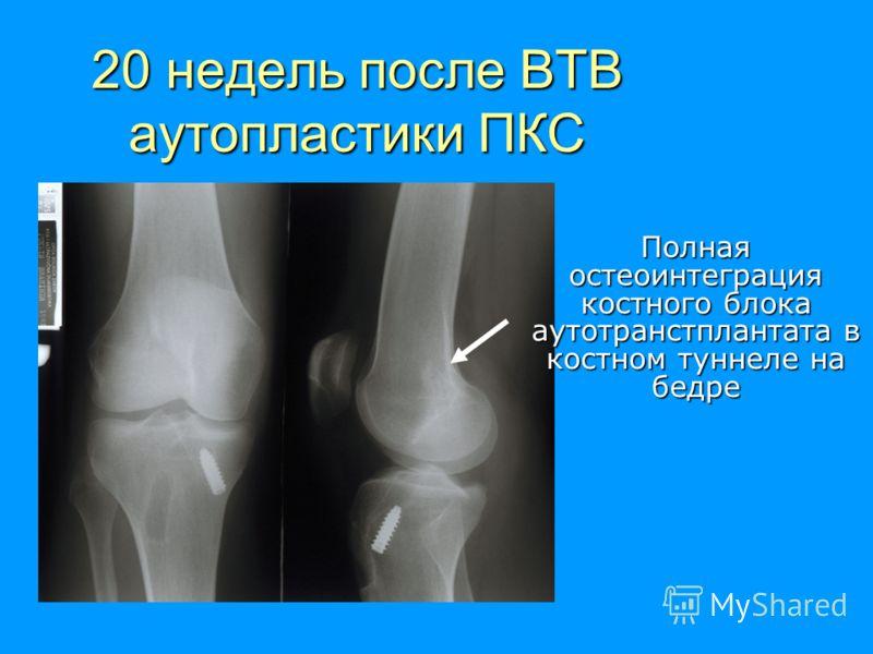 20 недель после ВТВ аутопластики ПКС Полная остеоинтеграция костного блока аутотранстплантата в костном туннеле на бедре