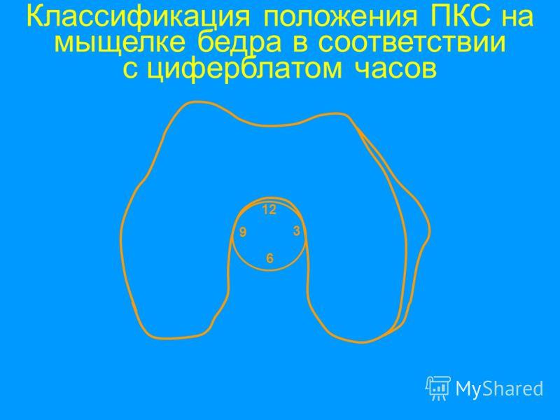 12 6 3 9 Классификация положения ПКС на мыщелке бедра в соответствии с циферблатом часов