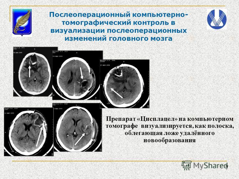 Препарат «Цисплацел» на компьютерном томографе визуализируется, как полоска, облегающая ложе удалённого новообразования 7 Послеоперационный компьютерно- томографический контроль в визуализации послеоперационных изменений головного мозга