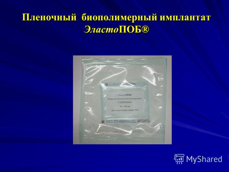 Пленочный биополимерный имплантат ЭластоПОБ®