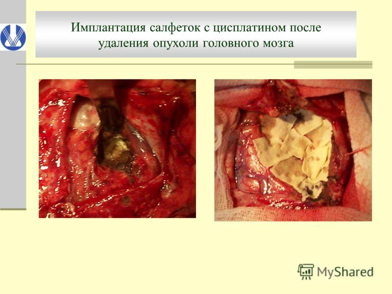 Имплантация салфеток с цисплатином после удаления опухоли головного мозга