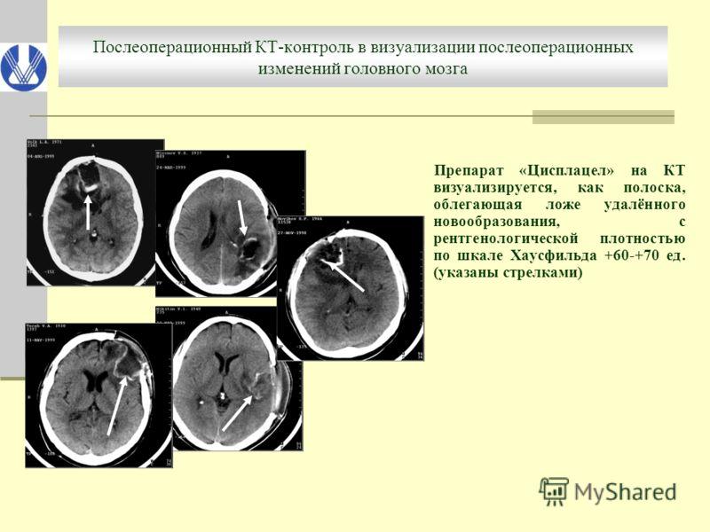 Послеоперационный КТ-контроль в визуализации послеоперационных изменений головного мозга Препарат «Цисплацел» на КТ визуализируется, как полоска, облегающая ложе удалённого новообразования, с рентгенологической плотностью по шкале Хаусфильда +60-+70