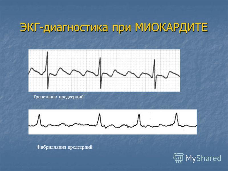 Трепетание предсердий Фибрилляция предсердий ЭКГ-диагностика при МИОКАРДИТЕ