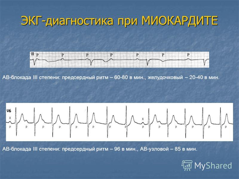 ЭКГ-диагностика при МИОКАРДИТЕ АВ-блокада III степени: предсердный ритм – 60-80 в мин., желудочковый – 20-40 в мин. АВ-блокада III степени: предсердный ритм – 96 в мин., АВ-узловой – 85 в мин.