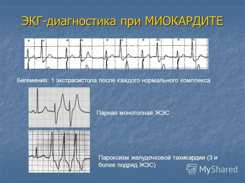 Бигемения: 1 экстрасистола после каждого нормального комплекса Парная монотопная ЖЭС Пароксизм желудочковой тахикардии (3 и более подряд ЖЭС) ЭКГ-диагностика при МИОКАРДИТЕ