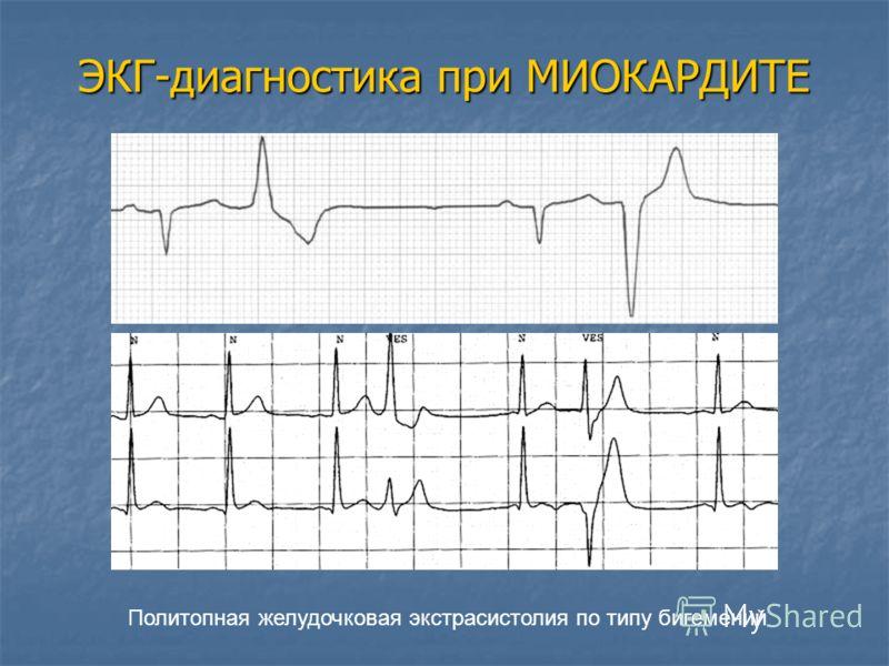 Политопная желудочковая экстрасистолия по типу бигемений ЭКГ-диагностика при МИОКАРДИТЕ