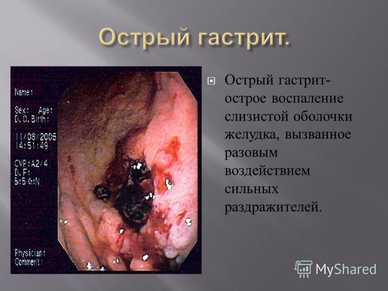 Острый гастрит - острое воспаление слизистой оболочки желудка, вызванное разовым воздействием сильных раздражителей.