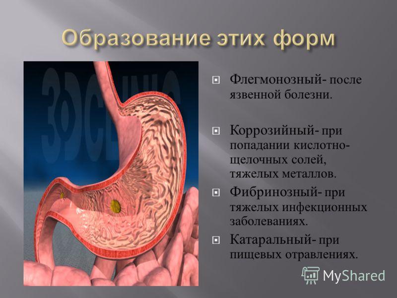 Флегмонозный - после язвенной болезни. Коррозийный - при попадании кислотно - щелочных солей, тяжелых металлов. Фибринозный - при тяжелых инфекционных заболеваниях. Катаральный - при пищевых отравлениях.